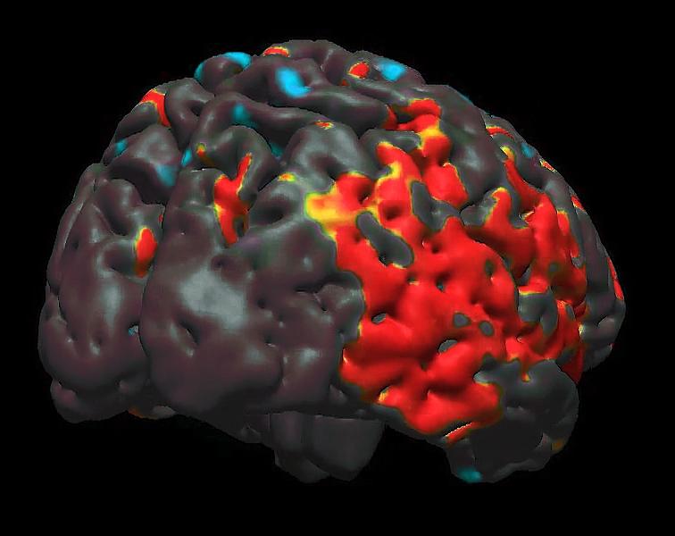 brain_0016_Layer